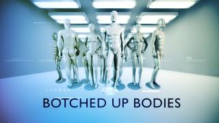 Sfušované telá / Nepovedené operace 3 -dokument
