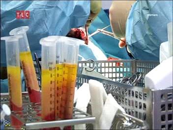 Sfušované telá / Nepovedené operace 1 -dokument