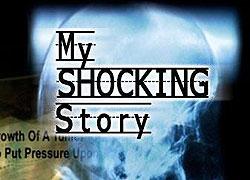 Šokující příbehy: Napůl člověk, napůl strom -dokument