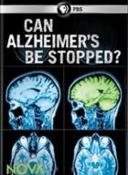 Dokážeme zastavit Alzheimera? -dokument